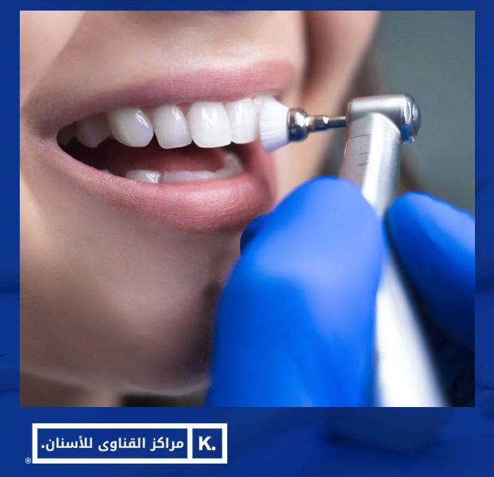 تلميع الاسنان