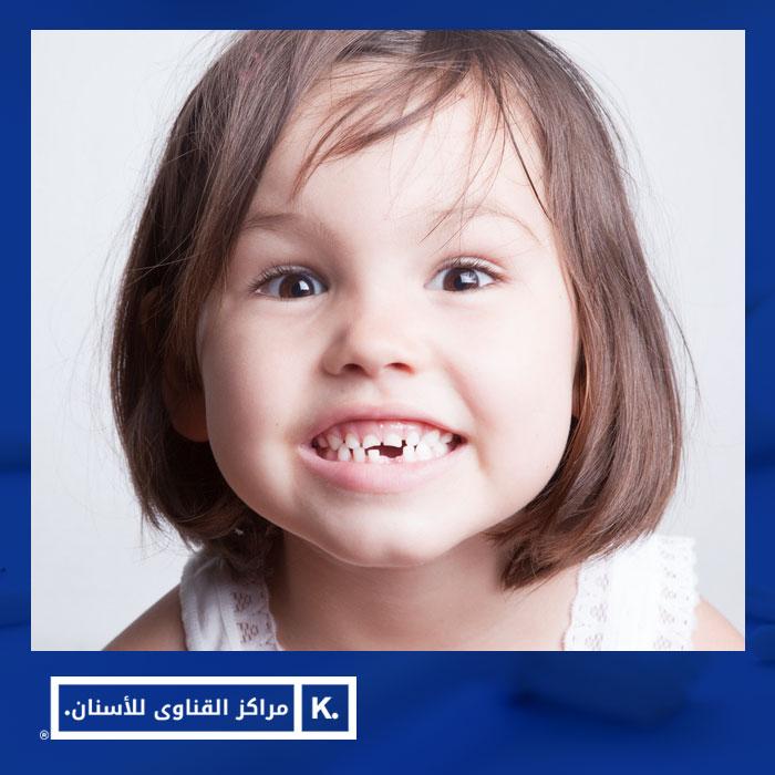 الأسنان اللبنية
