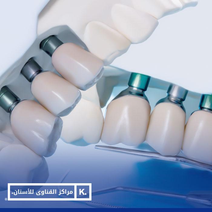 تركيب الأسنان