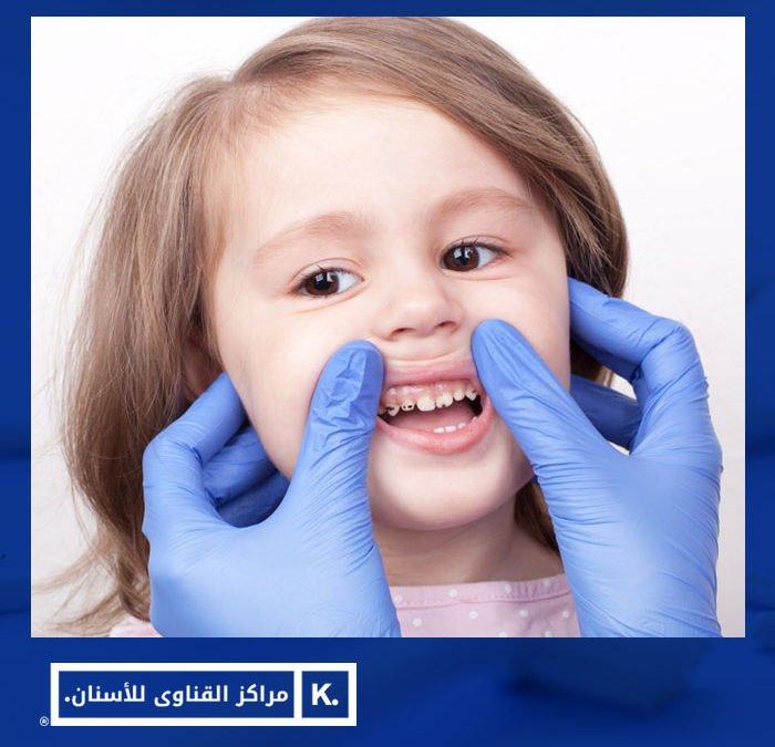 تسوس الاسنان عند الاطفال