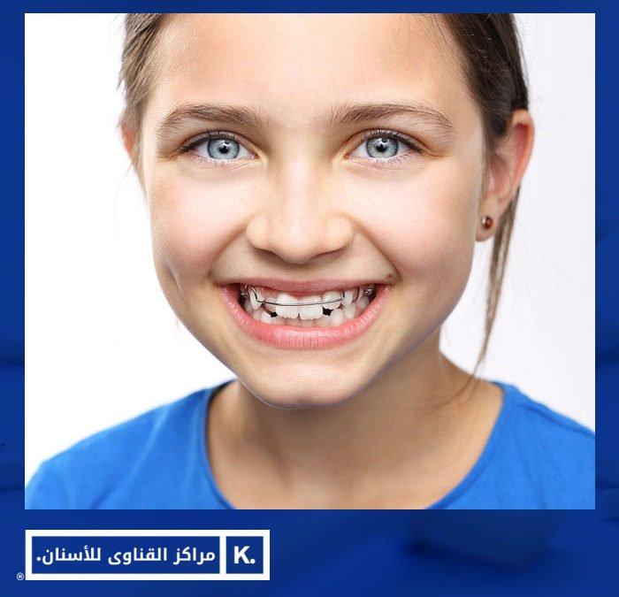 تقويم الاسنان للاطفال