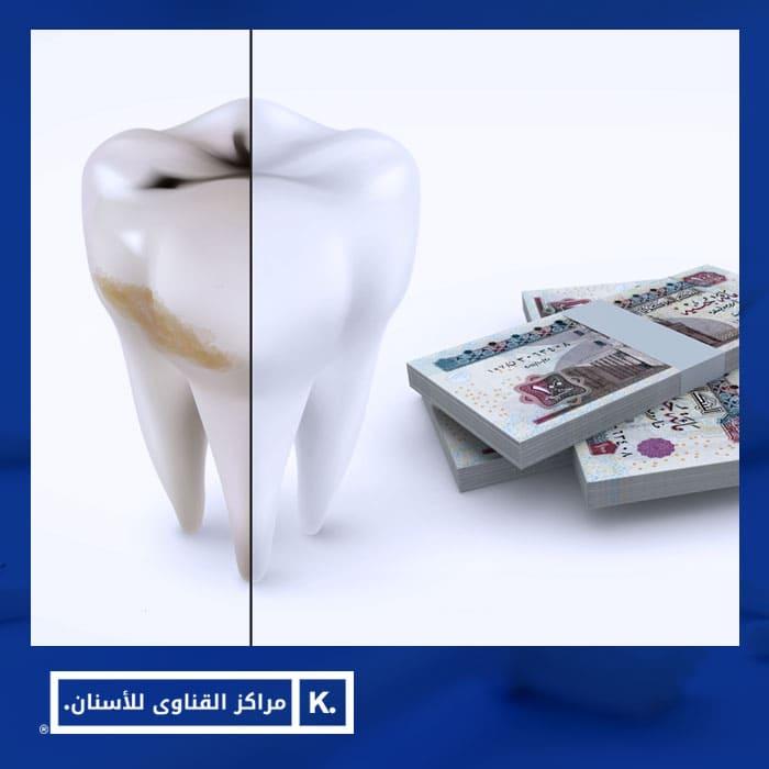 سعر تبييض الاسنان