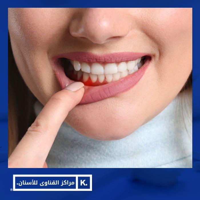 طرق علاج جيوب الاسنان