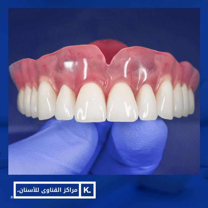 طقم اسنان متحرك