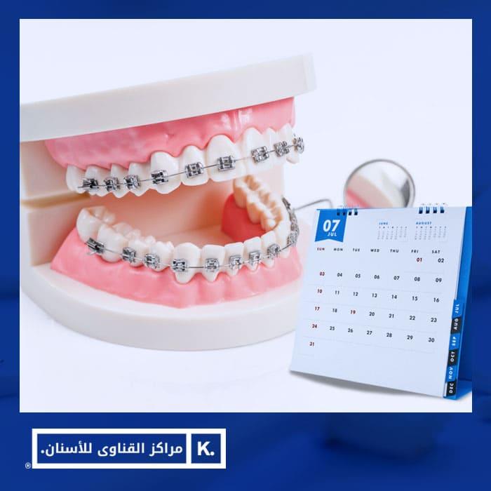 مدة تقويم الاسنان