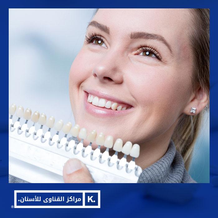 فينير الأسنان