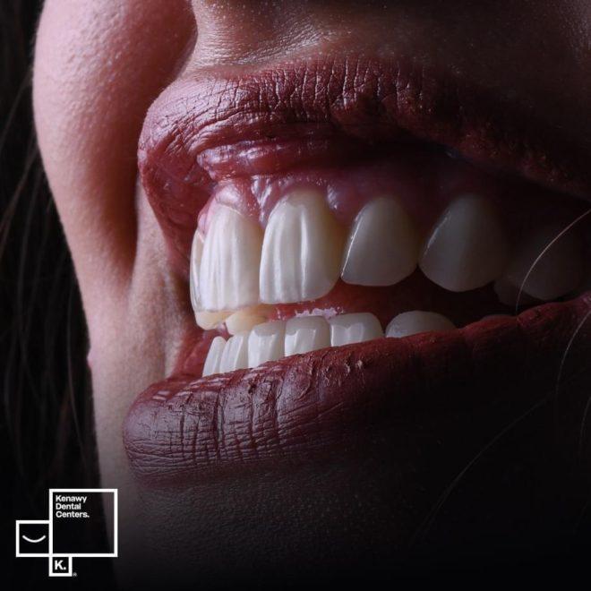 حالات قبل وبعد تقويم بروز الأسنان الأمامية
