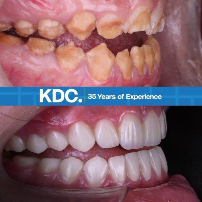 قبل و بعد تبييض الأسنان