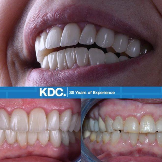 حالات قبل وبعد (تبييض وتقويم الأسنان2)