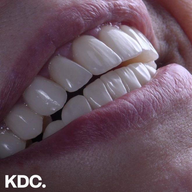 حالات قبل و بعد تبييض الاسنان4