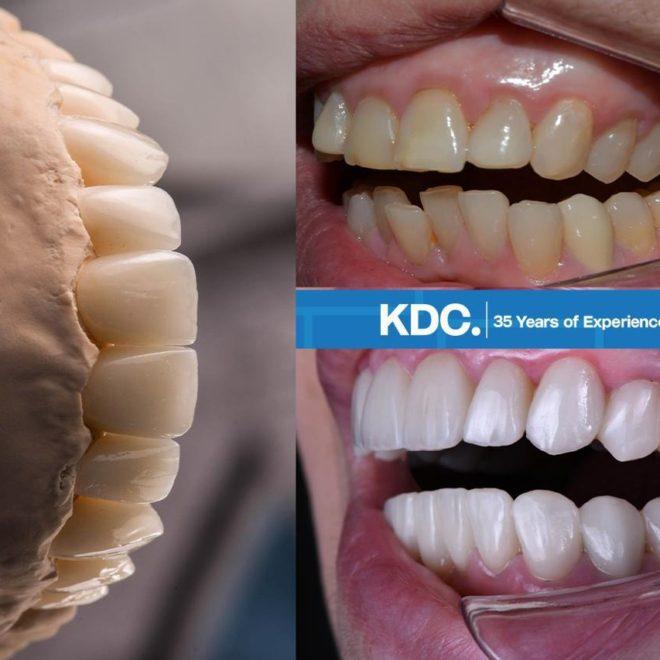حالات قبل وبعد (تبييض و تقويم الأسنان)