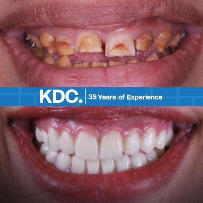 حالات قبل وبعد (تجميل الأسنان و ابتسامة هوليوود)