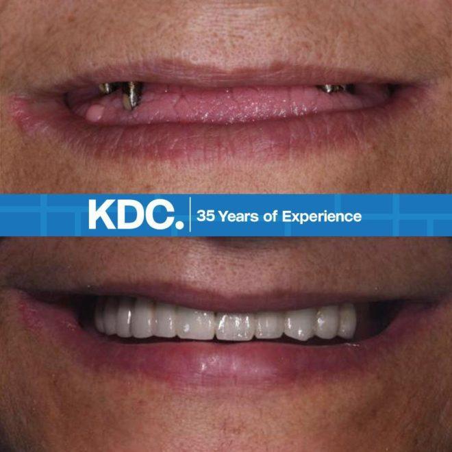 جالات قبل و بعد تركيب اسنان