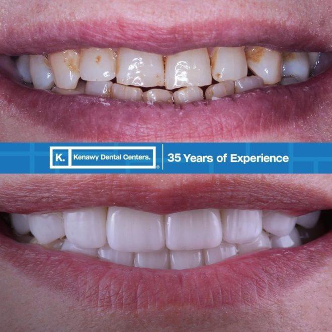 حالات قبل و بعد (ابتسامة هوليوود)2