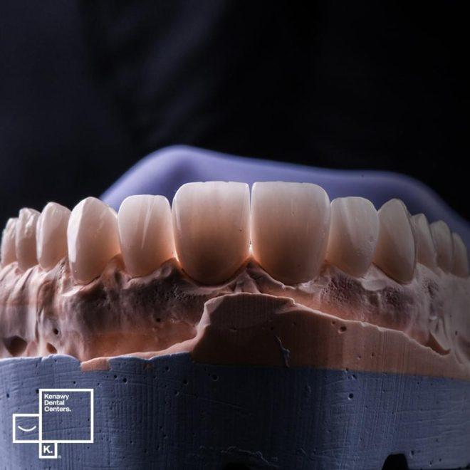 حالات قبل و بعد (تآكل الأسنان)