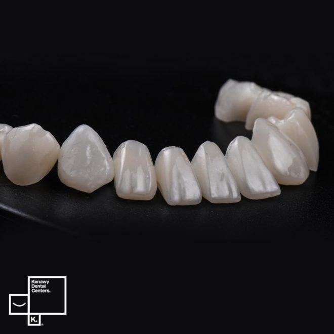 زراعة الاسنان حلات قبل و بعد5