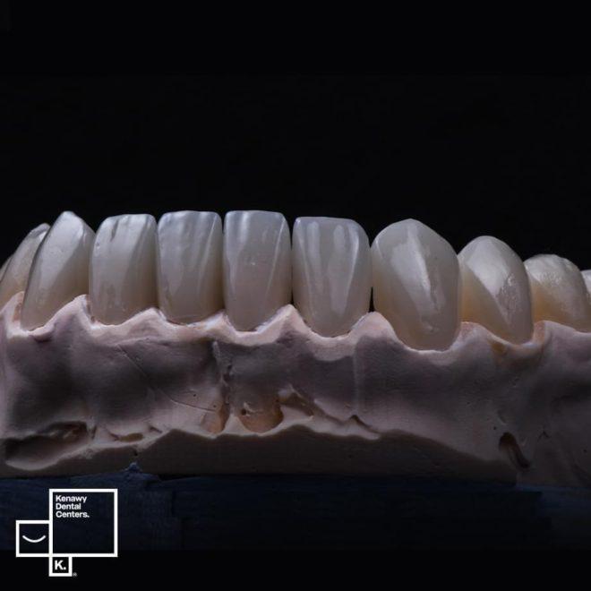 حالات قبل و بعد تركيبات الأسنان