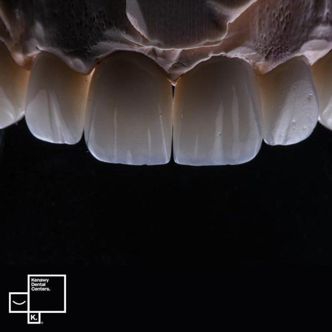 حالات قبل و بعد (طقم اسنان)