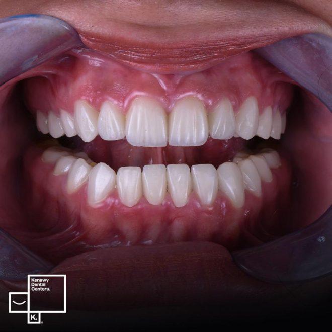 WhatsAحالات قبل و بعد (تقويم الأسنان الأمامية)pp_Image_2021-02-16_at_2.17.52_PM__287_29.jpeg