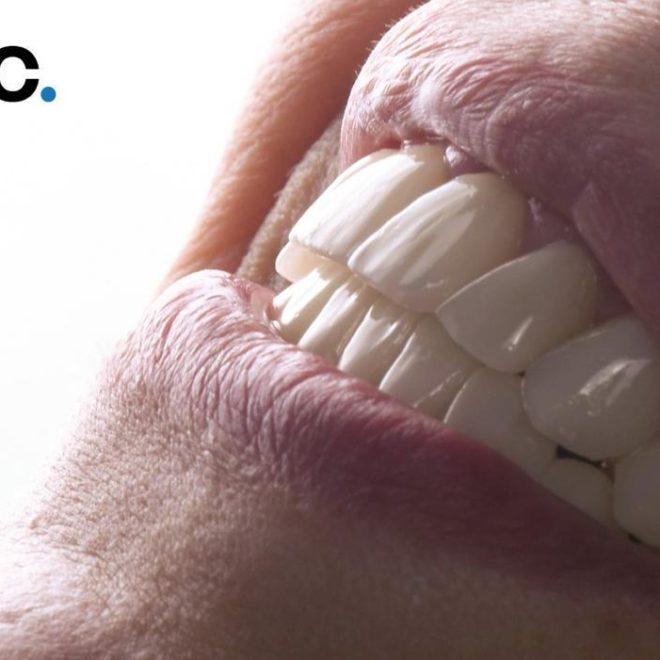 حالات قبل و بعد (عمليات تقويم الأسنان)
