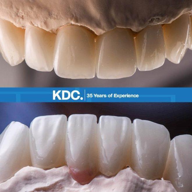 حالات قبل و بعد زراعة طقم اسنان