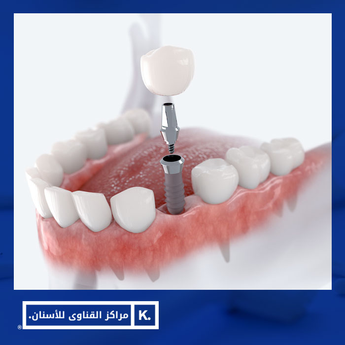 عمليات زرع الأسنان