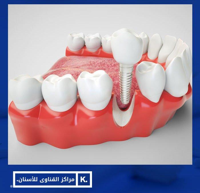 حقيقة زراعة الأسنان الفورية