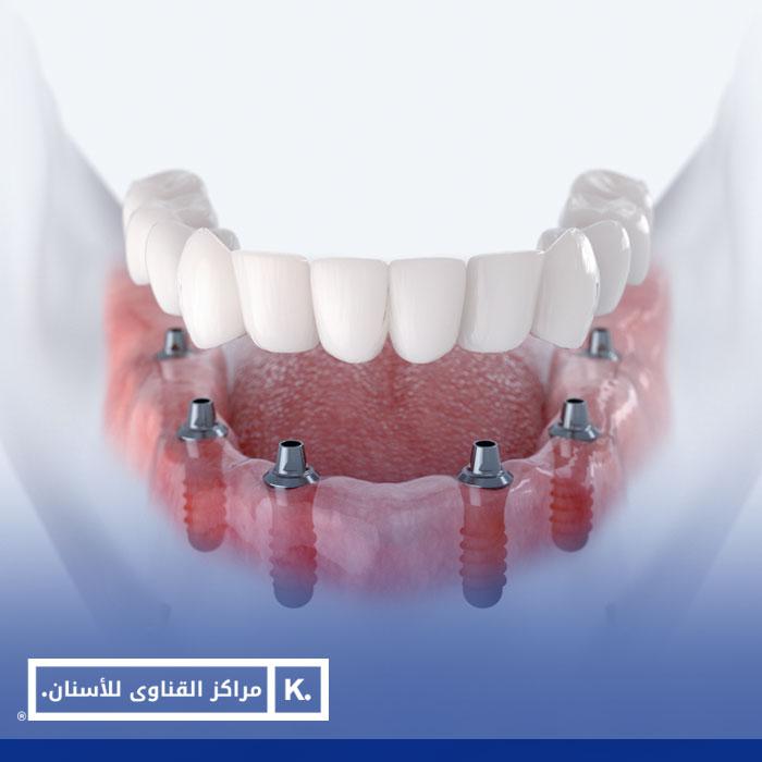 زراعة فك الاسنان