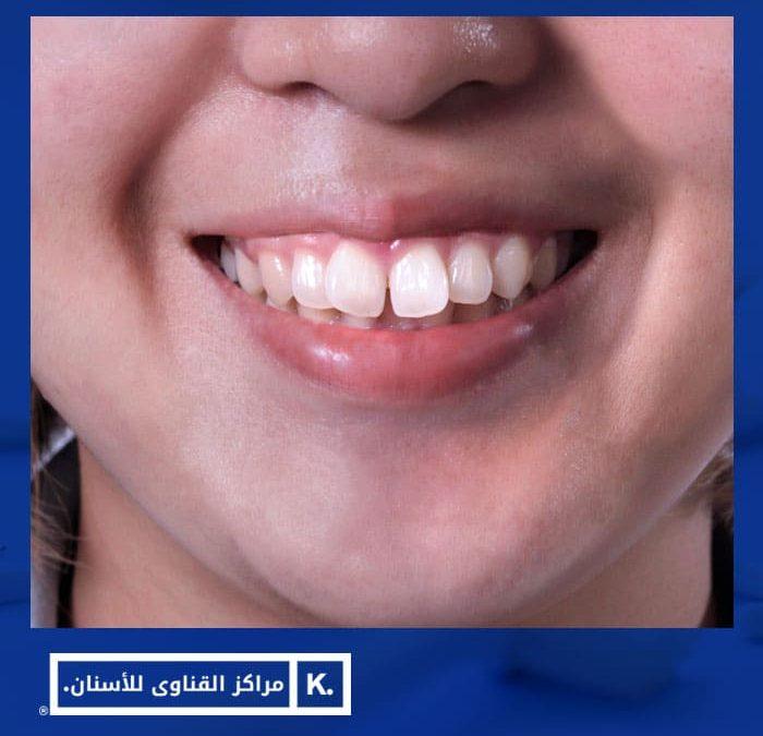 علاج بروز الاسنان الامامية بدون تقويم