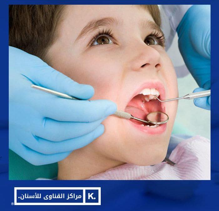 التهاب اللثة عند الاطفال