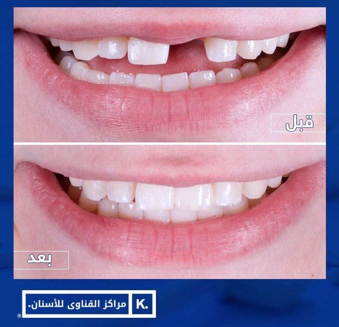 زراعة الاسنان قبل وبعد