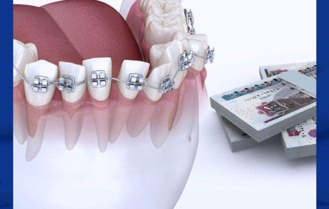 سعر تقويم الأسنان