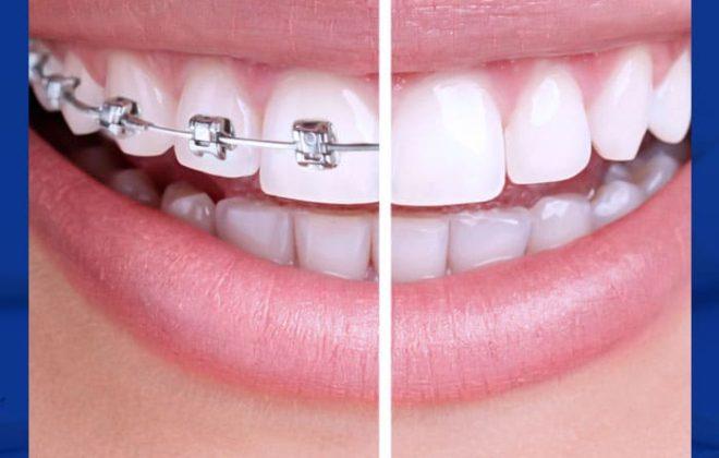 تقويم الاسنان قبل وبعد